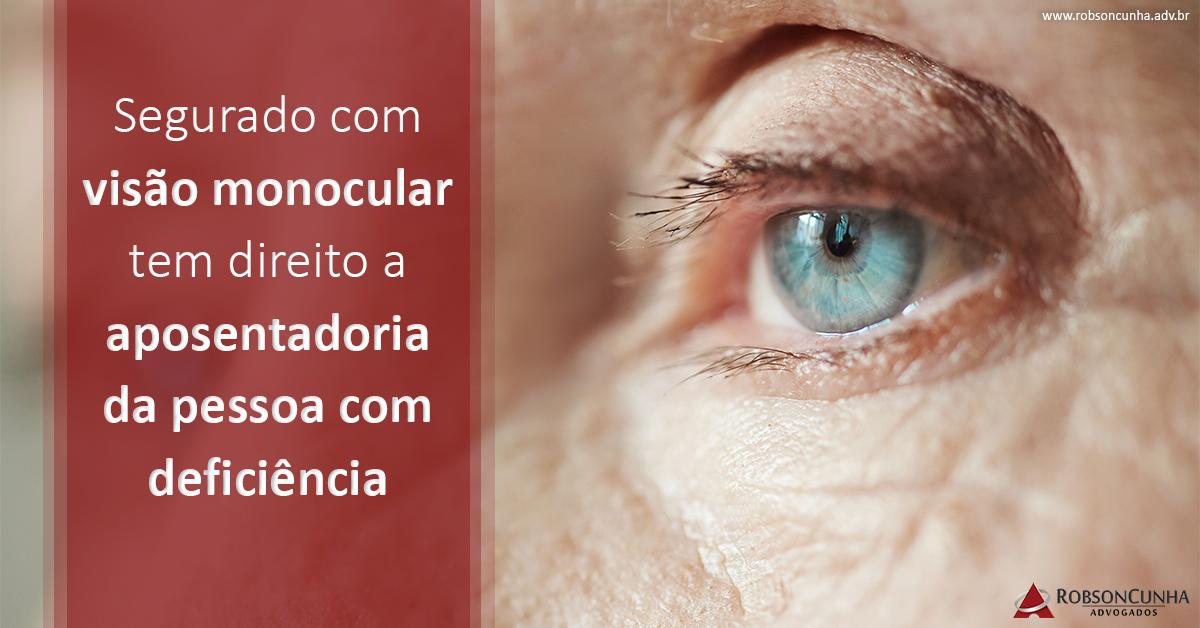 INSS deve pagar aposentadoria por tempo de contribuição de pessoa com deficiência a segurado com visão monocular